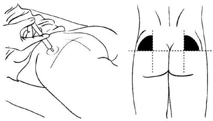 машина картинки выполнения внутримышечной инъекции впечатлениями, точно сможете