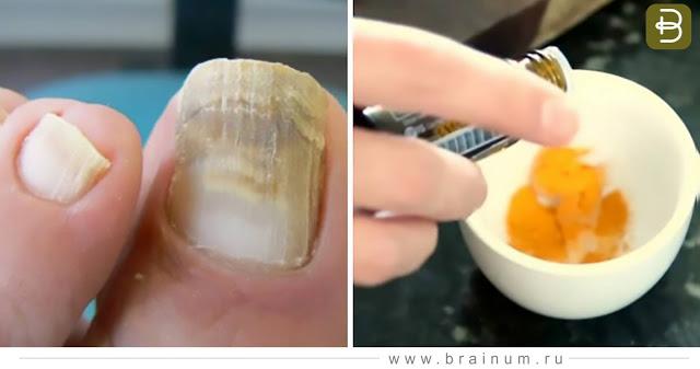 Рецепты от грибка ногтей на основе кокосового масла. Кокосовое масло для ногтей